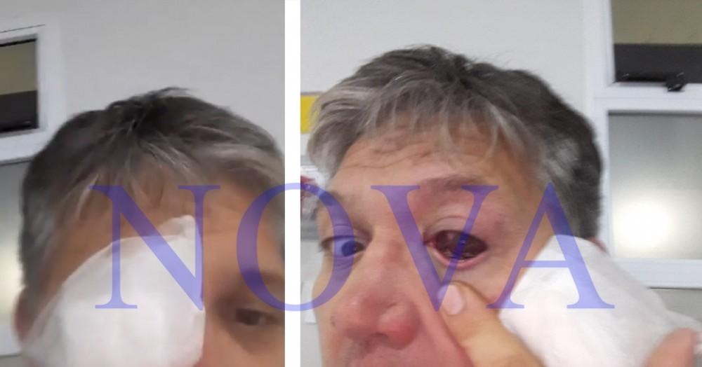 Marcelo Teilleri fue golpeado por la policía por estar en su casa cantando. (Foto: NOVA)