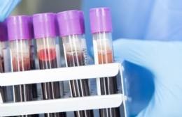 Nueve positivos de coronavirus en la última jornada